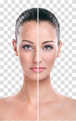 wajah wanita, Rhytidectomy Eye Face Wrinkle Cream, model cantik kontras Putih PNG clipart